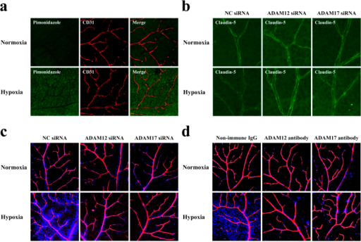 ADAM12 and ADAM17 are essential molecules for the impairment of barrier function of retinal vasculature under hypoxia.(a) Immunofluorescence images showing the oxygenation of retinas from mice under normoxia or hypoxia. Intraperitoneally injected pimonidazole hydrochloride (green) is incorporated in retinal cells from mice under hypoxia, as compared with minimal incorporation in retinal cells from mice under normoxia. Retinal vasculature is visualized by immunostaining for CD31 (red). (b) Immunofluorescence images, for claudin-5 expression, of flat mounts of retinas from mice under normoxia or hypoxia, with prior intravitreous injection of non-silencing siRNA (NC siRNA, for negative control), siRNA for ADAM12 or siRNA for ADAM17. Intravitreous injection of siRNA either for ADAM12 or ADAM17 rescues the retinal vasculature from the hypoxia-induced decrease in claudin-5 expression, in contrast to the hypoxic vasculature with the injection of non-silencing siRNA (NC siRNA). (c and d) Tracer experiment to evaluate the permeability of retinal vasculature under normoxia or hypoxia, with prior intravitreous injection of siRNAs (c) or neutralizing antibodies (d) specific for ADAM12 or ADAM17. For negative controls, non-silencing siRNA (NC siRNA) (c) and non-immune goat immunoglobulins (Non-immune IgG) (d) were injected intravitreously. Injected tracers, Hoechst stain (blue) and dextran (red), in flat mounts of retinas were detected under confocal microscopy, and merged views are presented. Nuclear staining of retinal cells by the extravasated Hoechst stain is noted in hypoxic retinas of negative controls, while the staining is minimal in hypoxic retinas with pre-injection of siRNAs or neutralizing antibodies for ADAM12 or ADAM17.