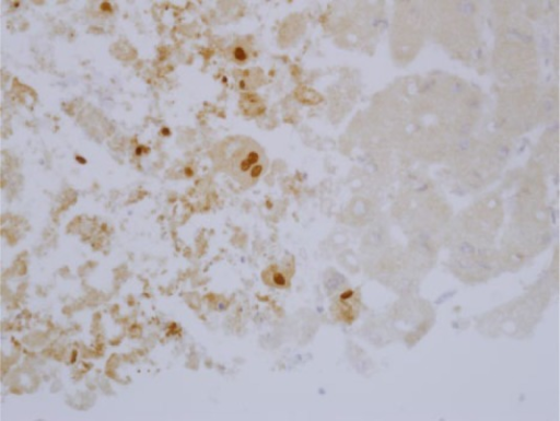 Immunohistochemistry. The liver specimen shown in Figure 1 was fixed and labeled with anti-HSV-2 antibody. Brown nuclei, containing HSV 2, are shown. Image provided by David Lewin, MD (Medical University of South Carolina).