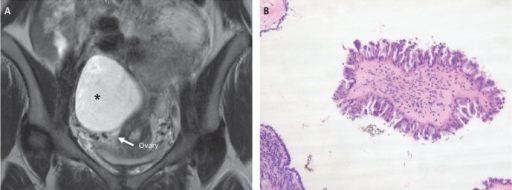 (A) T2-weighted magnetic resonance image showing a large, round, thin-walled, unilocular cystic shadow (*) separated from the ovary. (B) Serous borderline tumor. Higher magnification shows stratification and tufting of the epithelium with moderate atypia (H&E, ×400).