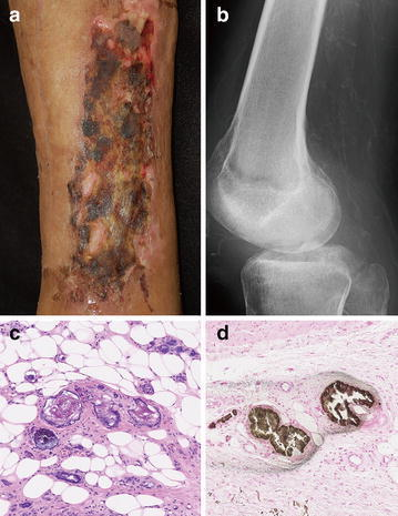 Clinical manifestation and laboratory examination. a Physical examination showing a skin ulcer covered with black-yellowish necrotic tissue on his lower leg. b Radiography demonstrated calcified vessels in both legs. c Hematoxylin and eosin stains showing thrombosis of vessels in skin biopsy specimen. d Von Kossa staining showing with calcium depositions in vessel walls