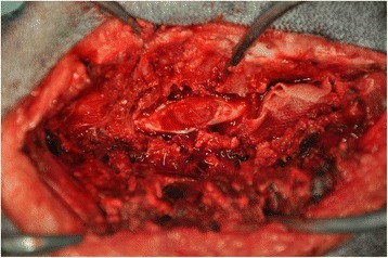 Intra-operative view of the cyst after durotomy