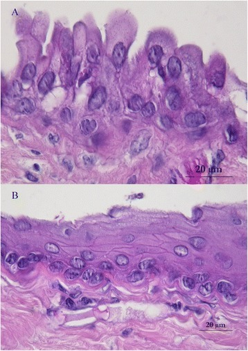 The cyst was lined by multiple epithelial structures: pseudostratified columnar epithelium with cylindrical cells with basal nuclei and round-shaped apical poles suggesting an enteral or respiratory epithelium (a). Stratified squamous epithelium suggesting a Malpighian epithelium but without keratin production (b)