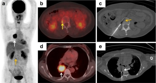 A 58-year-old woman with suspected lung carcinoma and bone metastasis. a, b, d18F-FDG PET/CT imaging (a maximum intensity projection image, b, d axial fusion images) shows uptake (SUVmax 4.6) in a lesion in the third lumbar vertebra on the right (a, byellow arrows) which is highly suspicious of metastasis, and uptake (SUVmax 11.3) in a lung nodule in the right lower lobe (a, dwhite arrows). c Axial noncontrast CT image (using bone windows) shows the biopsy needle positioned within the lesion (yellow arrow). e Axial CT image shows the biopsy needle positioned within the lung nodule (white arrow). Histological examination confirmed the bone lesion as metastatic poorly differentiated adenocarcinoma and the lung nodule as primary adenosquamous carcinoma, and exon 19 deletion mutation in EGFR was detected in both samples