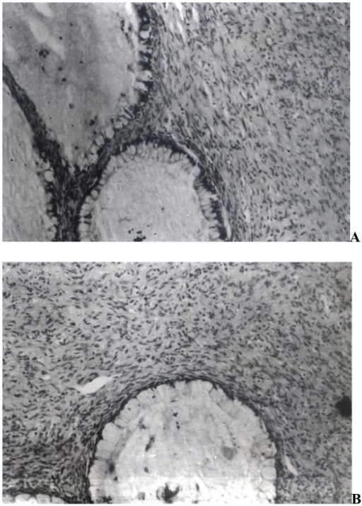 (a): Section shows slender spindle shaped cells embedded in a collagenous stroma along with presence of mucus producing glands. (H&E ×100) (b): Glands are lined by goblet cells and show presence of intraluminal mucin. (H&E ×400).