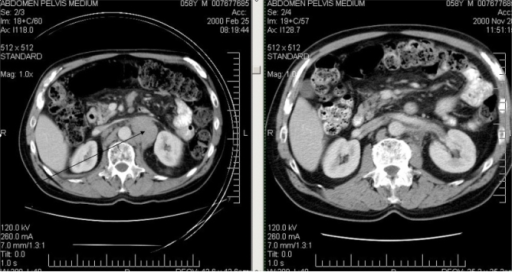 Patient 1: abdominal computed tomography scans showing regression of retroperitoneal adenopathy.
