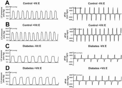 Representative left ventricular (LV) pressure recordings and maximal rate of LV pressure rise and fall (±dP/dt) obtained from control and STZ-induced diabetic rats with and without vitamin E (Vit E) treatment: (A) control rat maintained on a basal, un-supplemented vitamin E (-Vit E) diet; (B) control rat maintained on a vitamin E-supplemented (+Vit E) diet; (C) STZ-diabetic rat maintained on a basal, un-supplemented vitamin E (-Vit E) diet; (D) STZ-diabetic rat maintained on a vitamin E-supplemented (+Vit E) diet. Reprinted from Ref. 53 (Copyright 2007), with permission from Elsevier.