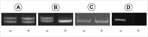 Representative example of PCR analysis in three cases with RSA by AR gene. (A) RSA30 (skewed 56.95%); (B) RSA32 (skewed 88.61%); (C) RSA48, showing homozygosity (not informative); (D) normal male. Lane - and + show PCR amplification before and after HpaII digestion, respectively.