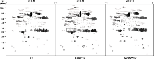 Synthetic referring gels of haematological patients.A comparative proteomic analysis of serum from patients with ScGVHD or without ScGVHD and before BMT was conducted to identify differently expressed protein spots. Only protein spots that were present in almost 75% of the total samples of each subject category were included in the synthetic referring gels.