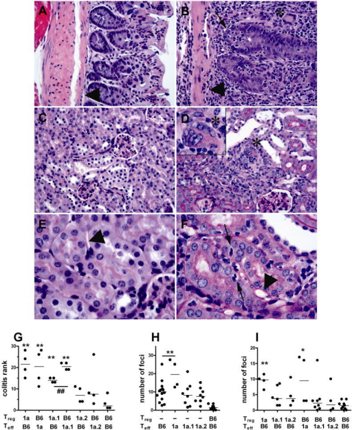 Sle1a Tregs and Teffs induce colon and renal inflammatory infiltrates. A. Colon from a B6.Rag mouse reconstituted with B6 Teff: B6 Treg, which is indistinguishable from unmanipulated B6. Lumen is toward the right of figure and the arrow head marks muscularis mucosa. B. High grade colitis in a mouse reconstituted with Sle1a Teff alone. Arrow head points to muscularis mucosa as in A. The wall is markedly expanded with lymphocytic cryptitis (thin arrow), inflammation of the lamina propria with occasional giant cells (upper right, asterisk), inflammation of the muscularis mucosa, and interstitial submucosa on left of picture. C. Kidney cortex from a B6.Rag mouse reconstituted with B6 Teff: B6 Treg, which is indistinguishable from unmanipulated B6. D. Kidney from a mouse reconstituted with Sle1a Teff alone, with a moderate size focus of interstitial inflammation (center between glomerulus and vein in upper center). Epithelioid giant cell (asterisk) is shown in set (1000x magnification). E. Normal tubules a mouse reconstituted with B6 Teff: B6 Treg, with open round nuclei in epithelial cells and peritubular capillary (arrowhead). F. Tubules from same animal as in D, showing tubulitis with lymphocytic infiltration containing dark, dense oval nuclei (arrows and others) and capillaritis in peritubular capillaries congested with lymphocytes (between tubules with arrows). Dilated but otherwise empty capillaries are also present (e.g. arrowhead). A–D. 400x original magnification, E–F. 1000x original magnification. A–B. H&E stain; C–F. PAS stain. G. Histological assessment of colitis ranked among the 6 groups with Teffs:Tregs of mixed origin. **: p<0.01 indicate the significance of comparisons with the B6:B6 group in a Dunnett's Multiple Comparison Test. ##: p < 0.0004, t test between Sle1a1 Tregs:B6 Teffs and B6 Tregs:Sle1a.1 Teffs. H. Number of renal foci induced by Teffs as compared to controls B6:B6. The values of Teffs alone are significantly higher than that of B6:B6 for all strains. **: p<0.01 indicate the significance of the comparison between B6 and Sle1a Teffs. I. Number of renal foci induced Teffs:Tregs of mixed origin *: p<0.05, **: p<0.01 indicate the significance of comparisons with the B6:B6 group in a Dunnett's Multiple Comparison Test.