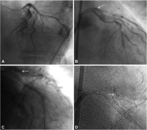 A: left coronary angiography showed chronic total occlusion