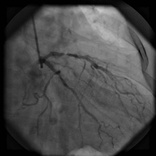 Coronary Artery...