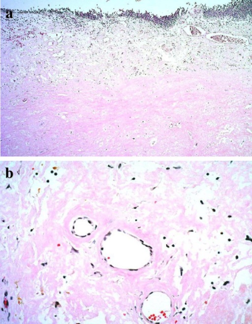 Histopathological findings of the specimens revealed extensive extracellular amorphous eosinophilic deposits in the subepithelial layer. Hematoxylin and eosin stain, a: ×40, b: ×200.