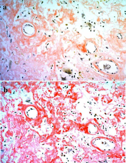 Immunohistochemical analysis showed positive staining at eosinophilic deposits. a: Congo red stain ×200, b: Dylon stain ×200.
