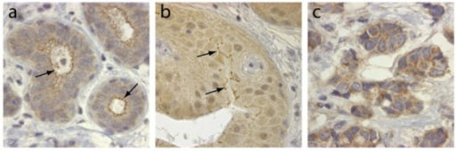TRAF4 expression in normal breast and cancerous tissues. Immunohistochemistry of TRAF4 expression (brown) in normal breast (a), in situ carcinoma (b) and invasive carcinoma (c). Note that TRAF4 localization is modified from a predominantly membrane-associated presence in normal breast (a, arrows) to a mainly cytoplasmic presence in invasive tumor cells (c); in situ carcinomas represent an intermediate state in which TRAF4 remains associated focally with the membrane (b, arrows).