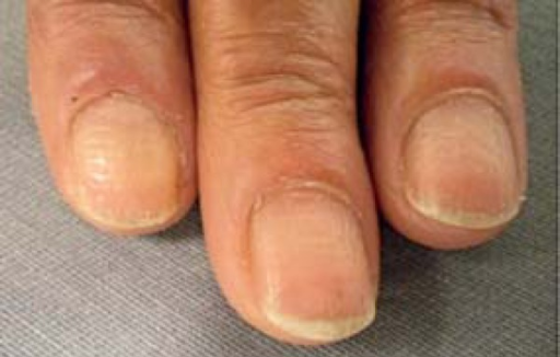 Cupuliform depressions on fingernails and some linear hemorrhages