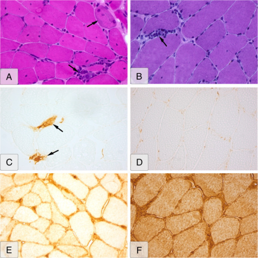 Histopathologic muscle-biopsy images of SSc-PM overlap patient versus PM patient. Left side (A, C, E): SSc-overlap patient. Right side (B, D, F): PM patient. (A) Hematoxylin & eosin (H&E) stain; upper marker, necrosis; lower marker, lymphocytic infiltrate; (B) H&E stain; marker, lymphocytic infiltrate; (C) MAC stain; markers, MAC upregulation; (D) MAC stain, no upregulation; (b v 02D7; (E) MHC class I stain, sarcolemmal MHC class I upregulation; (F) MHC class I stain, sarcolemmal and diffuse cytoplasmic MHC class I upregulation.