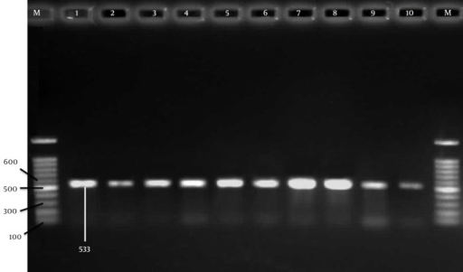 Agarose Gel Electrophoresis of PCR Product Amplified From mecA GenesThese genes from ten oxacillin resistant S. aureus strains. M = DNA marker fragments. Lane 1-10 indicates the mecA positive samples. The DNA fragments of 533-bp were amplified from mecA gene.