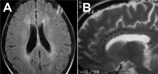 "Periventricular and deep white matter involvement of the brain in Susac syndrome (A). Sagittal T2 showing multiple large central callosal ""snowballs"" (B) (courtesy of Dr. Sahraian MA)"
