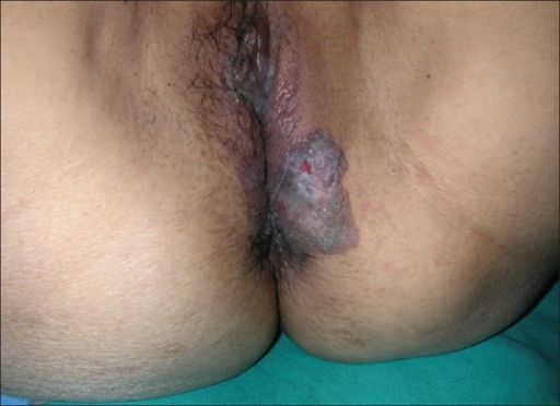 Lesion on perineal area