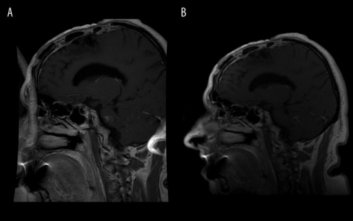"Aliasing artifact (""wrap around"") on brain MRI with FOV=24×18 cm (A). The same patient, examination with FOV=24×24 cm (B)."