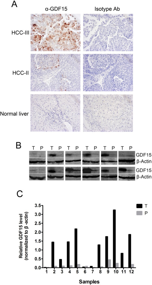 GDF15 protein expression in HCC, adjacent paracarcinomatous liver (PCL) and normal liver (NL) tissues.(A) Normal liver and HCC with different grades of malignancy were prepared for IHC with anti-GDF15 or isotype antibodies, respectively. Representative results are shown. (B) GDF15 protein expression in HCC (T) and PCL (P) lysates was determined by Western blotting. An antibody against β-Actin was used as a loading control. (C) Quantification of Western Blot described in Fig 4B with Image J.