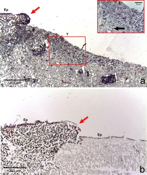 Regrowth of living crust.Regrowth of living crust in (A) CWBS and (B) CWPD. Remnant healthy crust (red arrows) regrew upward and laterally over dead/dying crust. Insert in (A) displays enlargement of transition area with cells showing a condensed nucleus or protoplasmic content (black arrows). T, Transition; Ep, epithallial cells.