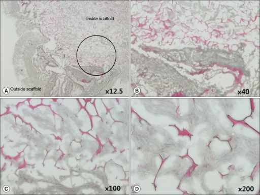 Magnification of the inner side of the H&E-stained artificial scaffold 30 days after implantation into SCID mice. The area in the black circle (A) is magnified in (B-D). (D) The ×200 magnification shows eosin-stained collagen and hematoxylin-stained adipose tissue-derived stem cells within the artificial scaffold.