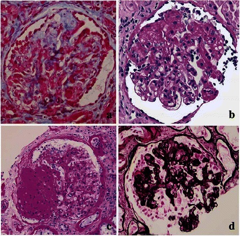 Histopathological FSGS variants. a Adhesion of the capillary loops to Bowman's capsule is thought of as a nidus for segmental sclerosis and an early stage of FSGS (Trichrome). b FSGS with amorphous (hyaline) deposits (Periodic acid–Schiff). c Segmental consolidation (<50 %) of the glomerulus is typical of FSGS NOS (Periodic acid–Schiff). d Collapsing FSGS is characterized by segmental (or global) proliferation of podocytes and segmental (or global) implosion of the capillary loops (Jones Methenamine Silver)