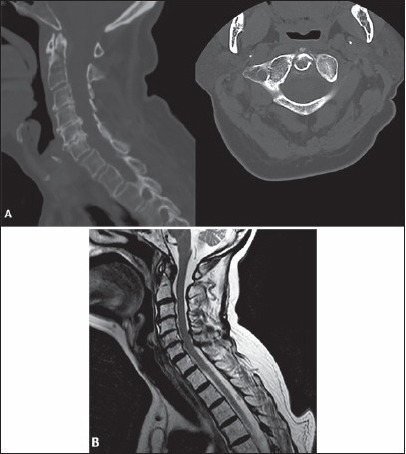 81-year-old female status post fall who sustained type II dens fracture. At time of injury: (a) Sagittal and axial computed tomography scan, and (b) Sagittal T2-weighted images demonstrating C2 fracture