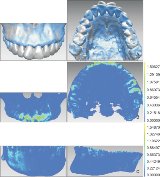 Pretreatment and post-treatment registration of the jaws. A, Maxillary registration. B, Mandibular registration. Blue indicates post-treatment and silver indicates pretreatment. C, Detection map after registration. Dark blue is visible (registration accuracy ≤ 0.15 mm).
