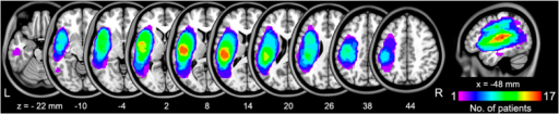 Distribution of the lesion areas for all aphasic patients.The lesion area overlap across patients was rendered on the brain. Colors represent the number of patients with a lesion to a specific voxel. Numbers below each axial map and sagittal map refer to the z-plane and x-plane coordinates of the MNI space, respectively. Letters L and R correspond to the left and right sides of the brain, respectively.