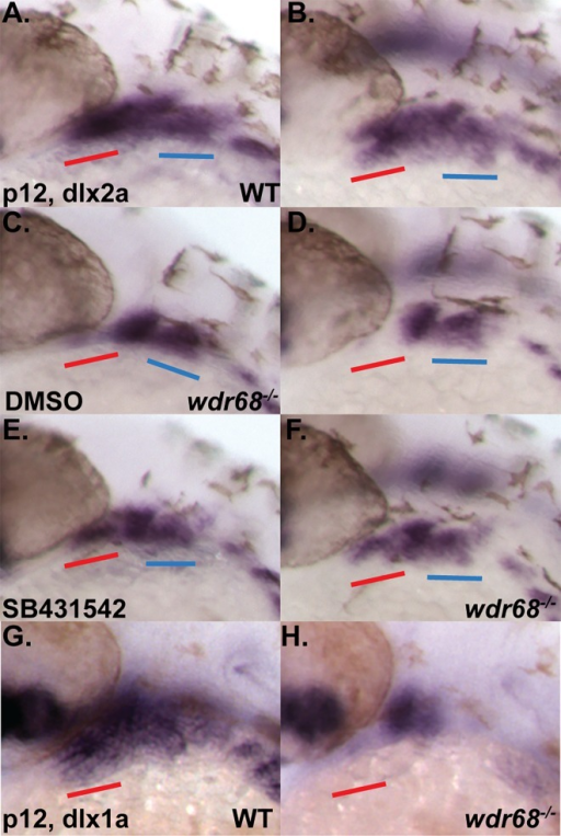dlx1a and dlx2a expression is wdr68-dependent and responsive to inhibition of TGF-β signaling in wdr68hi3812/hi3812 zebrafish.(A-H) ISH analysis of prim-12 stage embryos raised at 32°C. A-F) dlx2a expression with red underline for anterior portion of 1st arch and blue underline for 2nd arch. A, C, E) lateral view. B, D, F) dorso-lateral view. A, B) DMSO-treated wildtype sibling showing normal dlx2a. C, D) DMSO-treated wdr68hi3812/hi3812 mutant showing loss of anterior 1st arch dlx2a. E, F) SB431542-treated wdr68hi3812/hi3812 mutant showing partial rescue of anterior 1st arch dlx2a. G, H) dlx1a expression. G) wildtype sibling showing normal dlx1a. H) wdr68hi3812/hi3812 mutant showing loss of anterior 1st arch dlx1a.