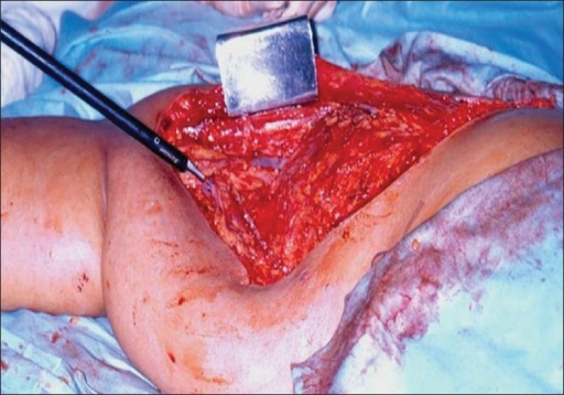 Modified radical mastectomy: Intraoperative photograph