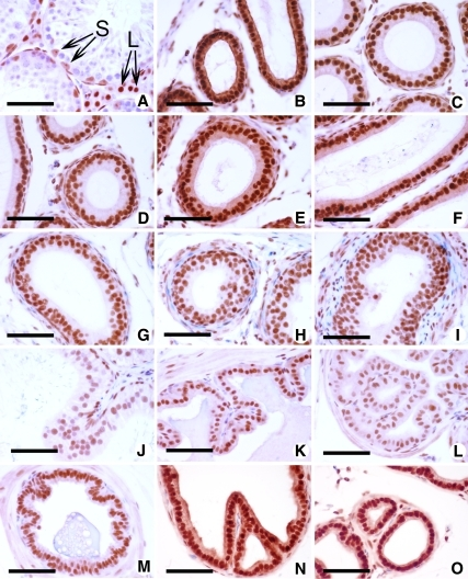 Histological appearance and immunohistochemical detection of AR protein in reproductive organs of ProxE-ARKO mice. At 40 dpp: A, testis (S, Sertoli cells; L, Leydig cells); B, efferent ducts; C–I, epididymis segments IV-X; at 60 dpp: J, vas deferens; K, seminal vesicle; L, coagulating gland; M, ampullary gland; N, ventral prostate; O, dorsal prostate. Bar, 50 μm (counterstaining with hematoxylin). Immunodetection of AR in WT male reproductive tract is shown in Supplemental Fig. 4.