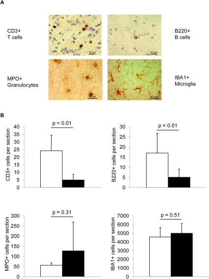 FTY720 decreases cerebral lymphocyte invasion.(A) Brain sections were stained 5d after MCAO for T cells (CD3), B cells (B220), granulocytes (MPO) and activated microglia/macrophages (IBA1). (B) Analysis of absolute cell counts of T cells, B cells, granulocytes and microglia/macrophages per total hemisphere in PBS and FTY720 treated animals at 5d after MCAO (n = 6–10 per group, 2–3 individual experiments).