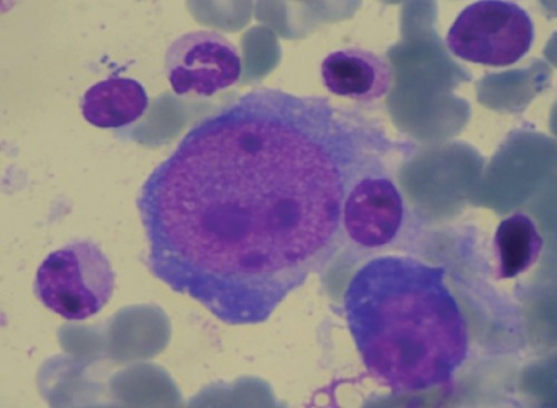 Giant proerythroblasts with nuclear inclusions.