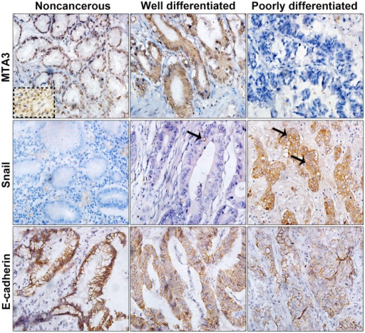 Immunohistochemical staining for MTA3, Snail, and E-cadherin in GEJ adenocarcinoma and adjacent noncancerous tissue.Representative samples of noncancerous tissue, well differentiated tumor and poorly differentiated tumor are shown. Strong to negative staining for MTA3 (top). Negative to strong staining for Snail (middle). Strong to weak staining for E-cadherin (bottom). The arrow indicates perinuclear staining of Snail. The dotted insert showed strongly positive staining for MTA3 in breast cancer cells as positive control (original magnification 400×).