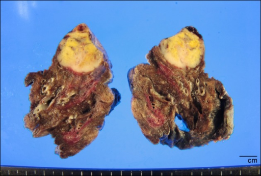 Cross section of the left upper lung, including the tumor mass, a peripherally located well-circumscribed, gray-white to yellow tumor mass, measuring 3.3×2.4×1.9 cm.
