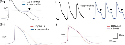 Isoprenaline and E4031 drug treatment in siRNA-treated long-QT syndrome-type 2 cardiomyocytes. (A) (i) Averaged and (ii) raw data of isoprenaline-induced arrhythmias in the form of early-afterdepolarizations observed only in control long-QT syndrome-type 2 cardiomyocytes (n = 10). (B). (i) Isoprenaline (100 nM, n = 10) or (ii) E4031 (1 µM, n = 5) treatment in A13-treated long-QT syndrome-type 2 cardiomyocytes did not cause early-afterdepolarizations, depicting rescue of long-QT syndrome-type 2-phenotype by RNAi-based therapy.