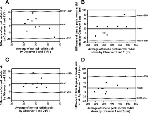 Intra- and inter-observer variability for normal radial strain and time to peak systolic normal radial strain. Bland-Altman analysis shows very good agreement between measurements taken by the same observer (A, B) and by two independent observers (C, D).