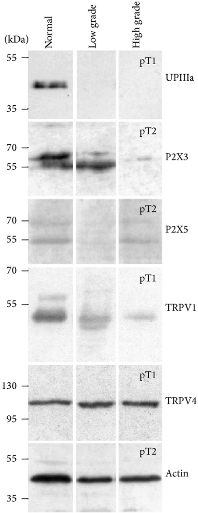 The expression pattern of uroplakins, P2X3, P2X5, TRPV1, and TRPV4 in normal human urothelium and in low and high grade papillary urothelial carcinomas as determined by Western blotting. In the protein samples of normal urothelium, UPIIIa, P2X3, P2X5, TRPV1, and TRPV4 are expressed. In low grade carcinoma, there is no expression of uroplakins. P2X3 and TRPV4 are expressed as in normal urothelium, while P2X5 is greatly diminished. TRPV1 expression is decreased in comparison to normal urothelium. In the protein samples of high grade carcinoma with lamina propria invasion (pT1) and those with muscularis propria invasion (pT2), the expression patterns were similar and therefore three examples of each are presented here. The expression of uroplakins is negative and expressions of P2X3 and TRPV1 are substantially decreased compared to normal urothelium. The expressions of P2X5 and TRPV4 are the same as in normal urothelium. Western blots were done in duplicate. Molecular weights are shown in kilodaltons (kDa).