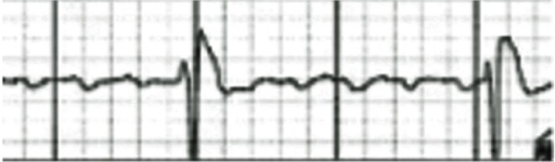 Electrocardiogram at the time of transfer to the hospital. There was pulseless electrical activity.