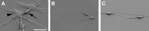 Scanning electron microscopic observation of sphere-derived cell populations reveals the distinct morphology of neuron-like and glia-like cells. Note the bipolar appearance of the neuron-like cell (arrow) with two neurites growing on a monolayer composed of cells with the characteristics of glial cells (arrowhead) shown in (A). Close interaction of spiral ganglion stem cell-derived neuron-like cells is suggested by axosomatic (B) and dendro-dendritic (C) contacts. Scale bar=20 μm in A and 30 μm in B and C.