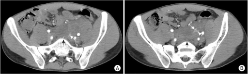 Contrast-enhanced CT images (A and B) show focal areas of high attenuation (white arrows) from the median sacral artery (black arrows) within the hematoma, a finding that represents an active bleeding.