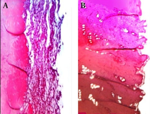 Histopathological Evaluation of Sections of Rat Abdominal MucosaA) Treated with microparticles discs (prepared with Na-Alg polymer); B), treated with microparticles discs (prepared with Na-Alg-Pectin) (magnitude X).