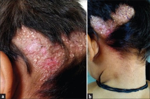 (a) Irregular, circumscribed erythematous, infiltrated plaque with complete alopecia and an uneven surface studded with multiple whitish globoid structures, on the left parietal scalp of a 5-year-old boy, (b) Same plaque showing a marginal extension of milia in a linear fashion along the posterior nuchal area following blaschkoid patten