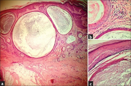 (a) H and E, ×4 scanner view showing multiple cysts lined by epithelia and filled with strands of keratin, in the dermis, interspersed between cross sections of hair follicles with sparse inflammatory infiltrates, (b) H and E, ×10 view showing a cross sectional view of a keratin-filled milium adjacent to a hair follicle, which is in the process of giving rise to a milium, (c) H and E, ×40 view showing a closer view of one of the milia in the dermis, lined by epithelia and the keratin strands within
