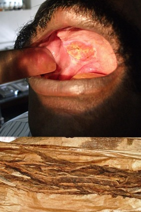 Carcinoma of the upper alveolus due to chewable raw tobacco