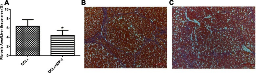 a Administration of IGF-1 reduced the severity of fibrosis in liver cirrhosis rats. b Representative histology of the cirrhosis without IGF-1 group. c Representative histology of the IGF-1 treated cirrhosis group. Data were shown with the mean ± SD. *P <0.01 vs. CCL4 group