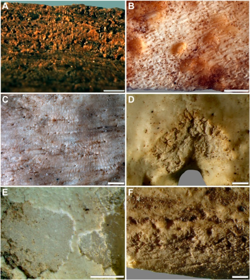 Comparative examples of surface modifications on bone made by modern snails and beetles and their larvae after four months in controlled experiments.Gastropods and beetles were found to produce similar modifications to those observed on the Rising Star hominin remains, and remove the surfaces of fresh, dry and fossil bones to an equal degree (see Figure 11). (A) Dry bovid rib showing surface removal associated with evenly spaced, multiple parallel striations made by the radula of an Achatina (land snail). (B) Fresh sheep bone that was originally covered with tissue showing how Helix aspersa (garden snails) have removed the outer cortical lamellae to produce an etched appearance and create circular shallow pits with smooth and striated bases. (C) Dry bovid rib showing shallow, evenly spaced, multiple parallel striations produced by Achatina. (D) Dry bird femur showing large individual striations that are variably arrow-shaped and often overlap, made by Omorgus squalidus (hide beetles). (E) A weathered bovid tooth showing surface removal with a scalloped edge produced by Dermestes maculatus larvae, and with a straight edge associated with scrape marks. (F) Scrape marks created by a D. maculatus adult beetle mandible on a dry medium-sized bovid long bone flake. The scale bar in all samples equals 1 mm.DOI:http://dx.doi.org/10.7554/eLife.09561.014